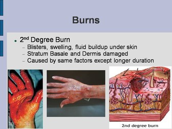 Burns and Skin Pathology PowerPoint