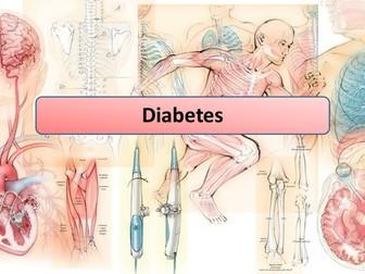 New AQA GCSE Biology Diabetes Lesson