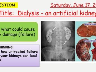 AQA new specification-Diaysis-Artificial Kidney-B12.4