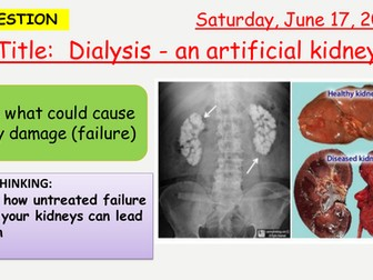 AQA new specification-Dialysis-Artificial Kidney-B12.4