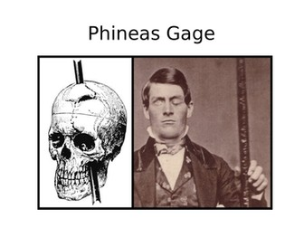 Psychology - Phineas Gage Research Task - Lobes of the Brain