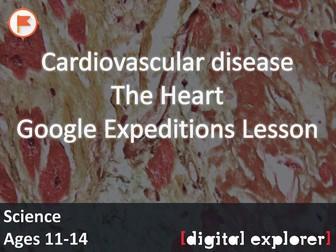 Cardiovascular disease #GoogleExpeditions Lesson