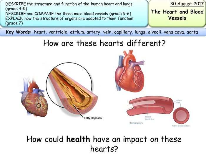 What Is Coronary Heart Disease Gcse - Cardiovascular Disease