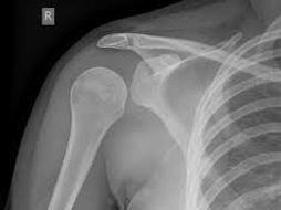 Unit 18 sports injuries Assignment 1 BTEC SPORT L3