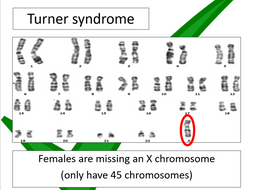 Prenatal testing & genetic screening (Edexcel SNAB)