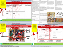 Health and the People: What was surgery like in the Medieval Period? (L4)