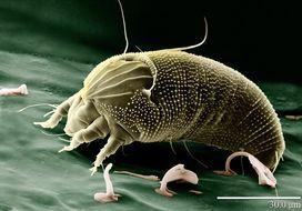 Biology - Microscope technology (Light vs electron)