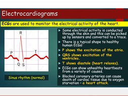 OCR A Level Biology - Module 3 Co-ordination of cardiac cycle