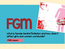What is FGM?