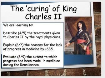 The treatment of King Charles II